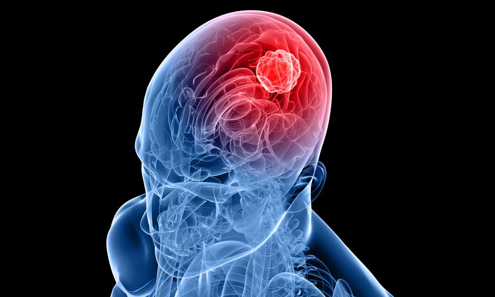 Blockerat protein kan underlätta strålbehandling av svåra hjärntumörer