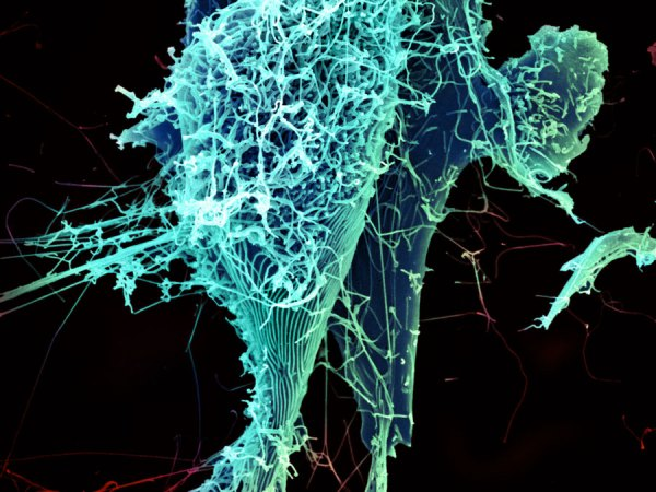 """""""String-like Ebola virus peeling off an infected cell."""" Heinz Feldmann, Peter Jahrling, Elizabeth Fischer and Anita Mora, National Institute of Allergy and Infectious Diseases, National Institutes of Health"""