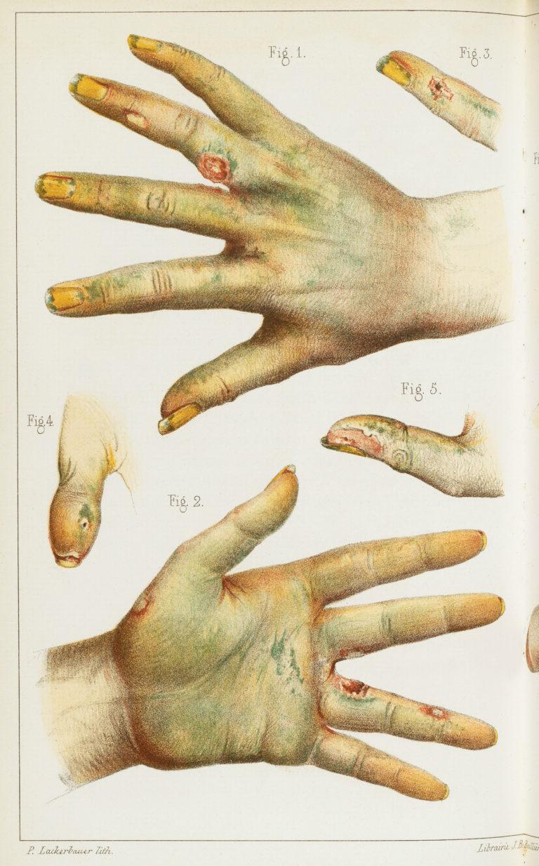 Medische prent van handen in contact gekomen met arsenicum, 19e eeuw