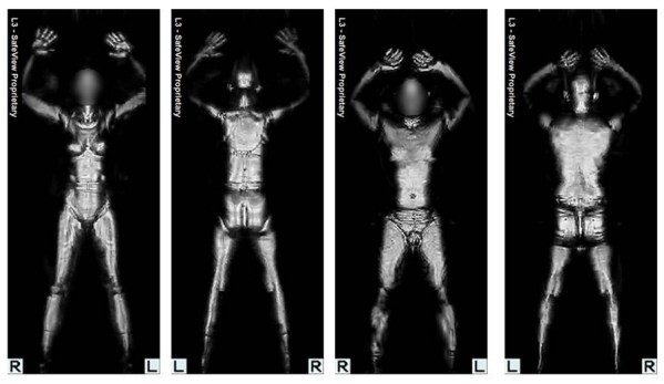naked-scanner
