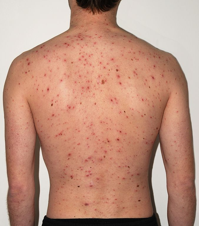 Unvaccinated high school student is suing the health department for banning him from school during a chicken pox outbreak