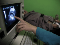 """In this photo taken Monday, Dec. 13, 2010, a nurse points out the image of a three-month-old fetus during a sonogram scan for """"Nancy"""" Yin at a clinic run by Marie Stopes International in Xi'an in central China's Shaanxi province. While comprehensive data are hard to come by, official figures show abortions are increasing, and Chinese media and experts say many if not most of the abortion-seekers are young, single women. (AP Photo/Ng Han Guan)"""