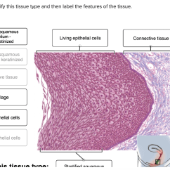 Stratified Columnar Epithelium Diagram Single Phase Wiring Solved Vlew Previous Atten Simple Squamous Epithel Correctly Identify This Tissue Type And Then Label The Features Of