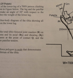 25 points the diagram of the lower leg of a [ 1024 x 768 Pixel ]