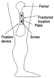 A Fixation Device Consisting Of A Plate And Two