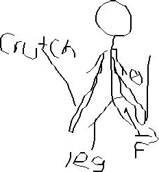 Solved: The Person In The Drawing Is Standing On Crutches