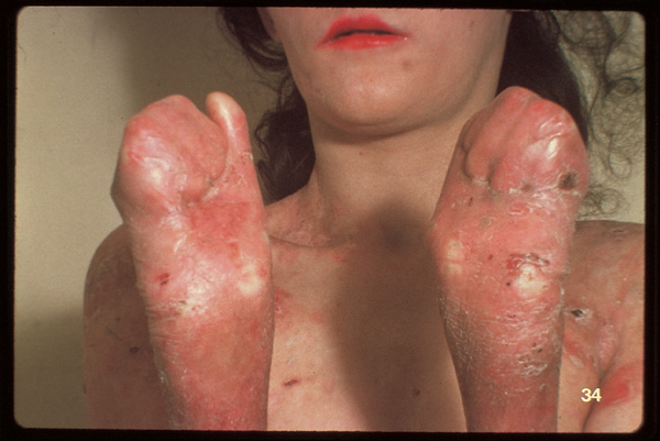 Skin fusion on the fingers and toes of an adolescent girl  The Clinical Advisor