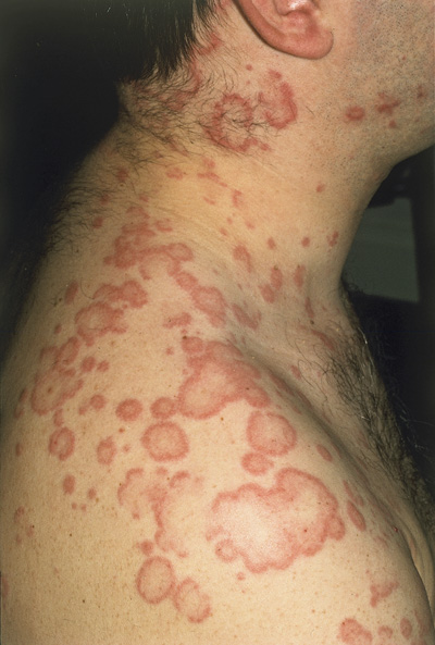 What To Look For With Drug Induced Urticaria The