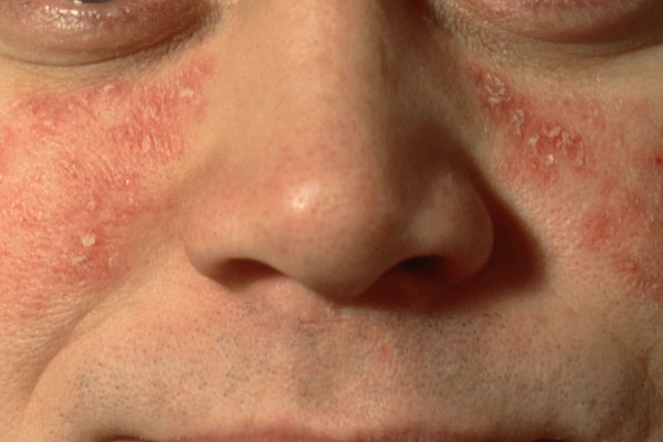 Psoriasis Variants  Related Conditions