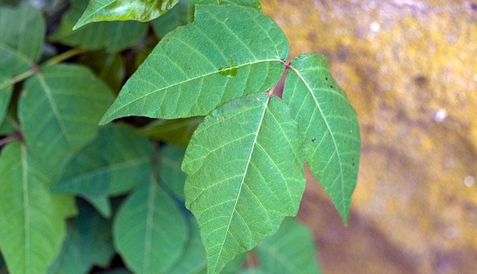 Ocular poison ivy rash  The Clinical Advisor