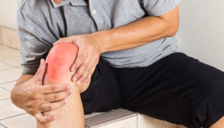 Image result for What IsPsoriatic Arthritis