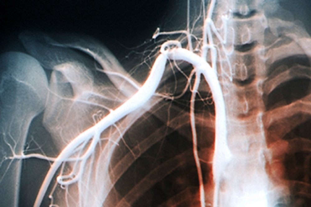 Thoracic outlet syndrome A review  The Clinical Advisor
