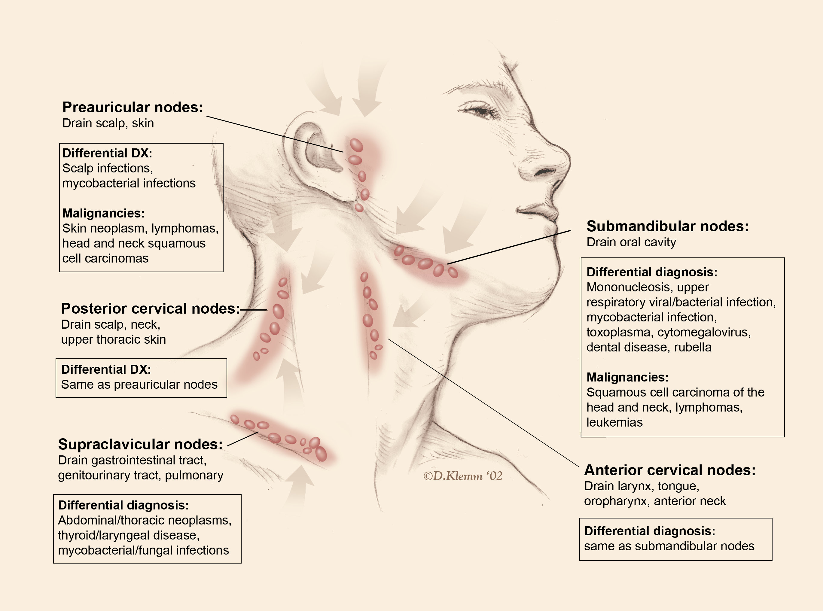 lymph nodes in groin location diagram early bronco wiring lymphadenopathy the clinical advisor