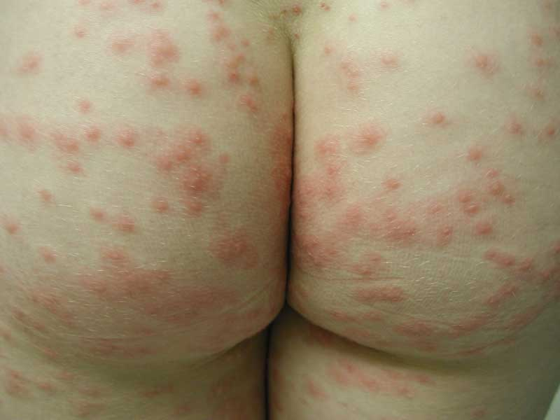 Systemic Itching Without Rash