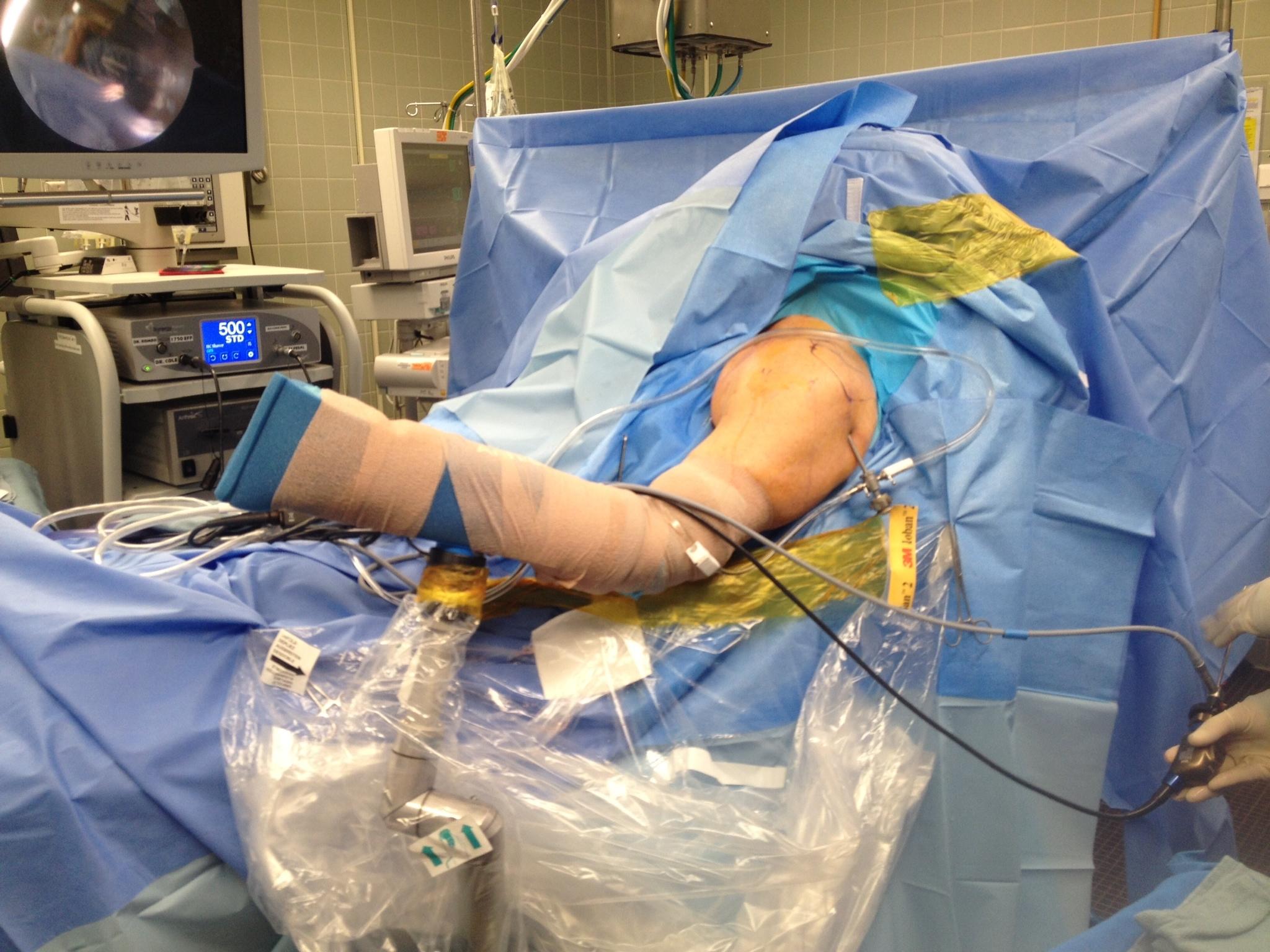 Managing the Failed Rotator Cuff Repair  The Clinical Advisor
