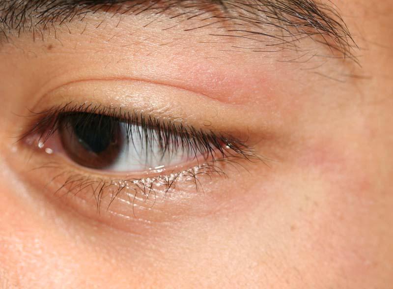 Eyelid Dermatitis (xeroderma of the eyelids eczema of the ...