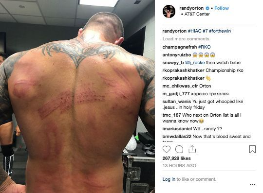 Randy Orton Shows Off Gruesome Battle Wounds After Hell in
