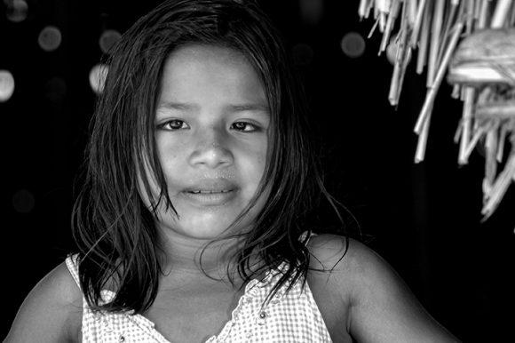 https://i0.wp.com/media.cubadebate.cu/wp-content/uploads/2020/04/Ni%C3%B1a-venezolana-beneficiada-por-la-Misi%C3%B3n-Milagro-en-Cuba-2005.-Foto-Roberto-Chile-580x386.jpg