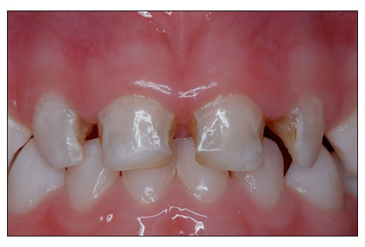 Pulpal Therapy For Primary And Young Teeth Nusmile Pediatric Crowns Dentalcompare Com