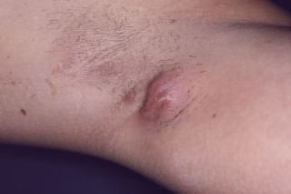 Clindamycin as monotherapy may be a useful and safe alternative to combination clindamycin and rifampicin treatment for hidradenitis suppurativa.