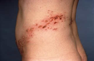 Participants with hidradenitis suppurativa who received immunosuppression had an increased risk of developing herpes zoster.