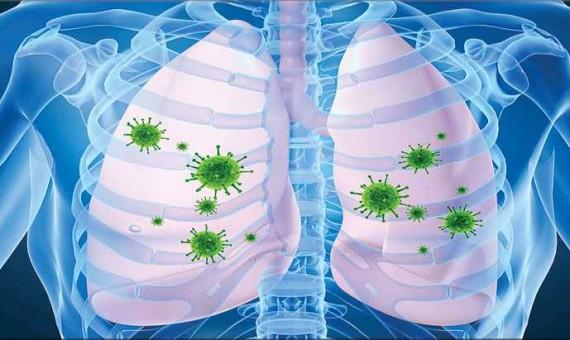 ما هي الفيروسات - مرض سارس
