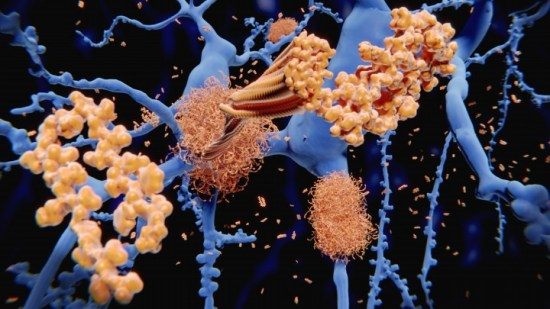 Identifying the molecular structure of one of Alzheimer's stickier culprits