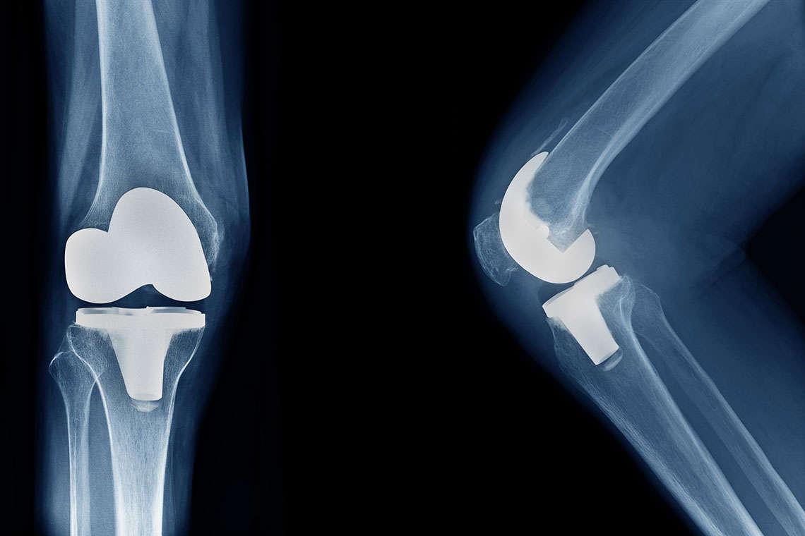 Zimmer X Ray