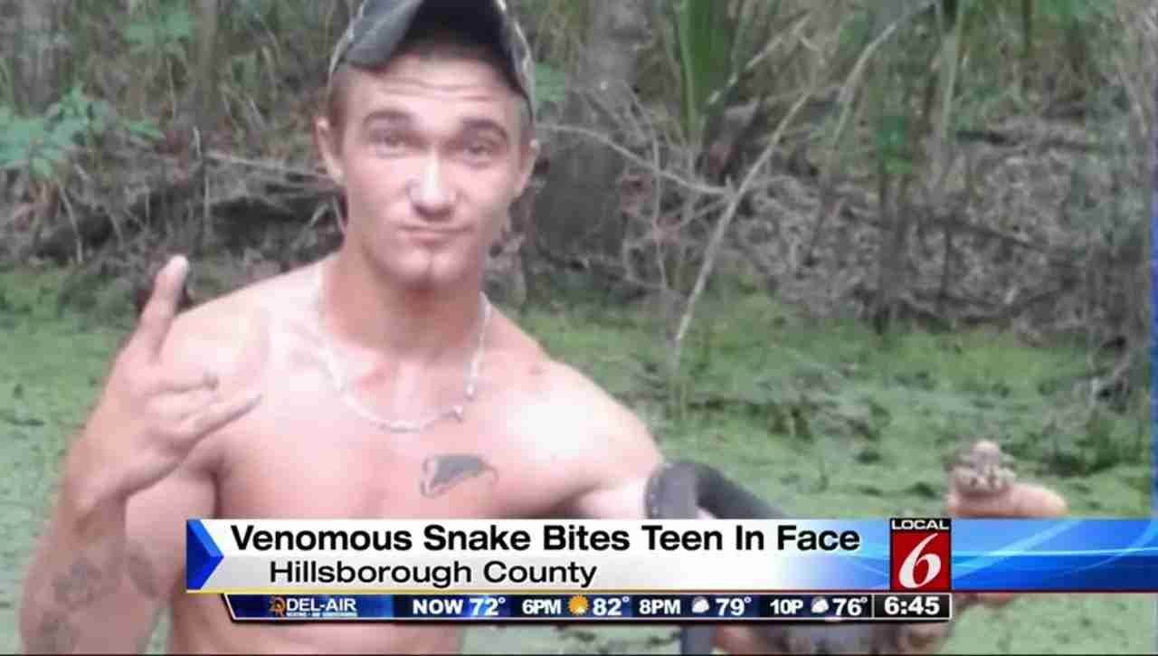 Video: Florida Man Bitten After Kissing Venomous Snake