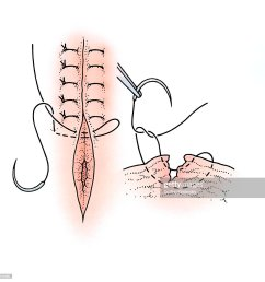 diagram showing surgical repair of a torn vagina stock illustration [ 1024 x 1023 Pixel ]