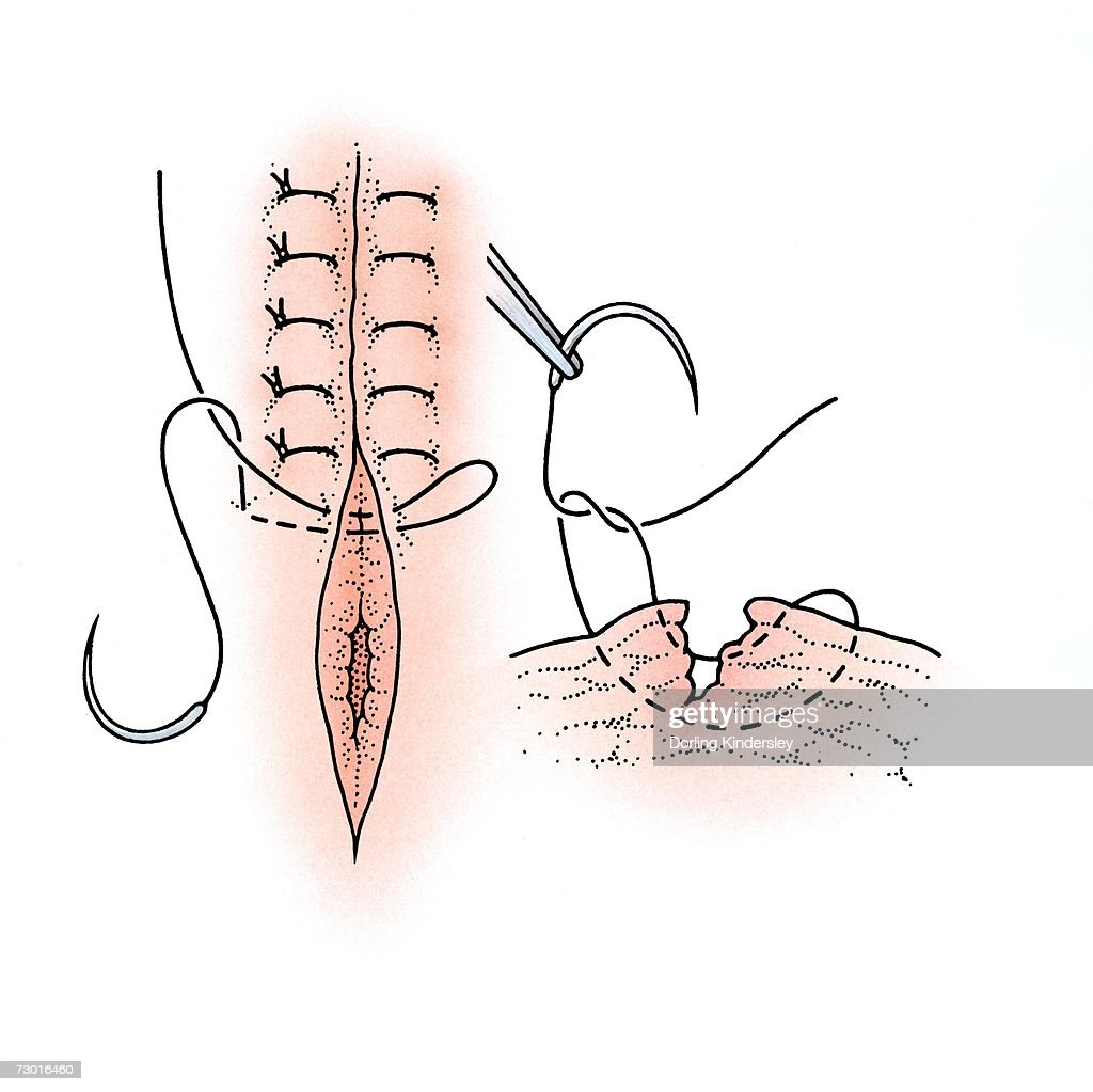 hight resolution of diagram showing surgical repair of a torn vagina stock illustration
