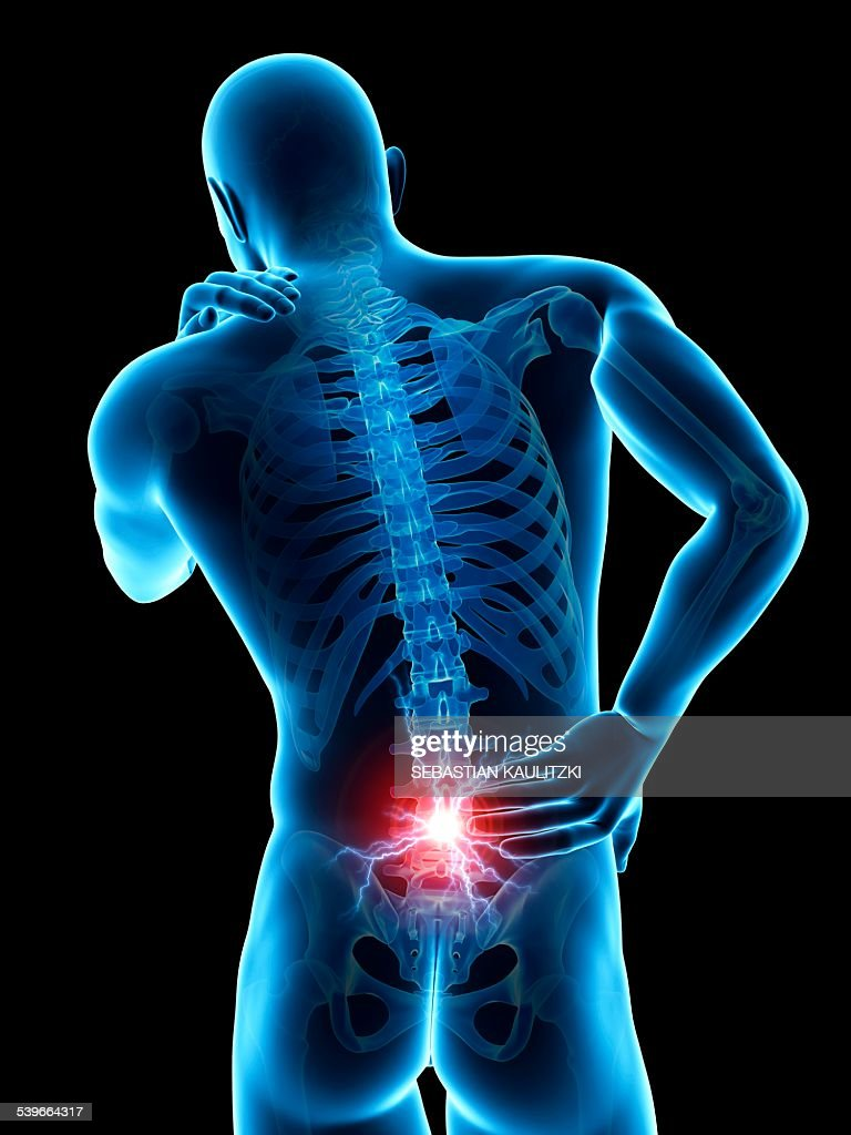 Human Back Pain Illustration High-Res Vector Graphic - Getty Images