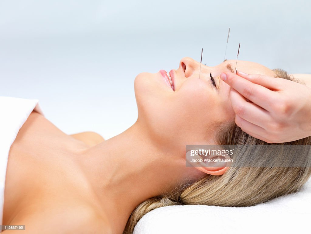 60 top acupuncture pictures