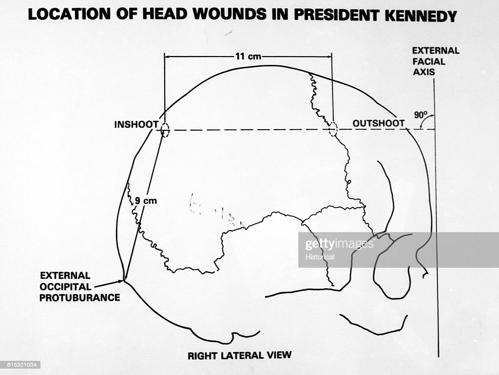 wound location diagram wiring diagrams wound location chart human body kennedy assassination crossection of head wound [ 1024 x 769 Pixel ]