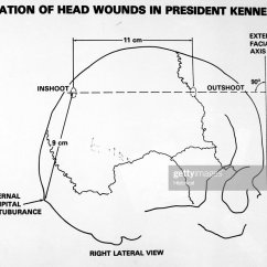 Wound Assessment Diagram System Sequence For Online Shopping Location Wiring Schematic Of Head Wounds In President Kennedy Included As Assassination