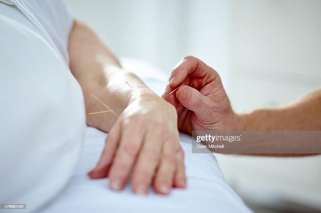 針灸の針 ストックフォトと畫像   Getty Images