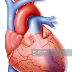 Realistic Heart Diagram 97 4l80e Wiring Human Stock Photos And Pictures Illustration Of The Causes A Myocardial Infarction Necrosis Part Secondary Muscle