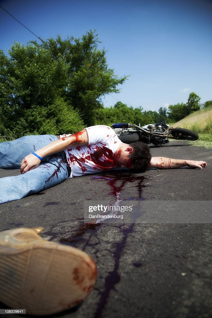 Motorcycle Accidents Pictures Gory : motorcycle, accidents, pictures, Motorcycle, Accident, Victims, Photos, Premium, Pictures, Getty, Images