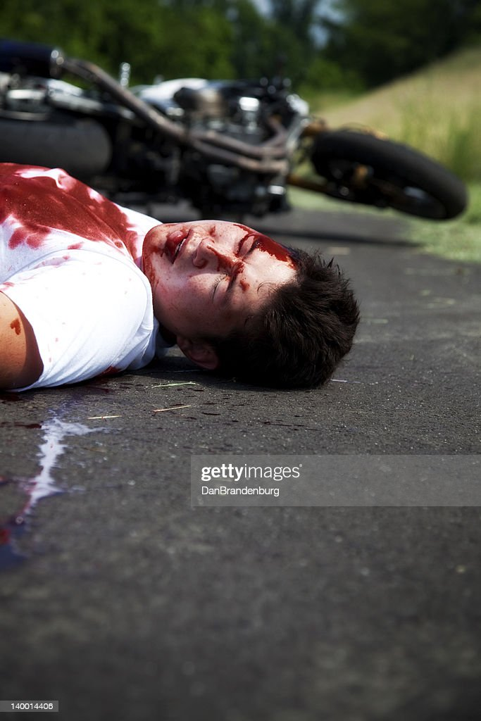 Motorcycle Accidents Pictures Gory : motorcycle, accidents, pictures, Accident, Photos, Premium, Pictures, Getty, Images