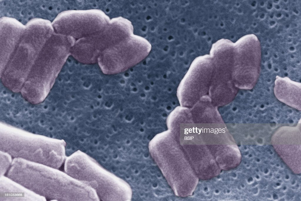 Clostridium Perfringens Stock Photos And Pictures Getty