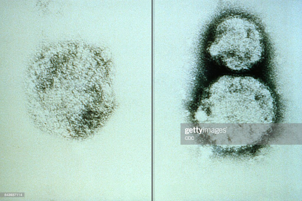 Hantavirus Stock Pictures, Royalty-free Photos & Images - Getty Images