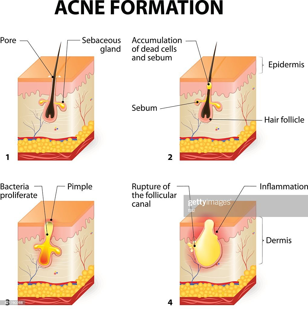 hight resolution of diagram of pimple wiring diagram usedacne formation stock vector thinkstock diagram of pimple
