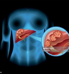 liver cancer diagram in detail vector art [ 1024 x 968 Pixel ]