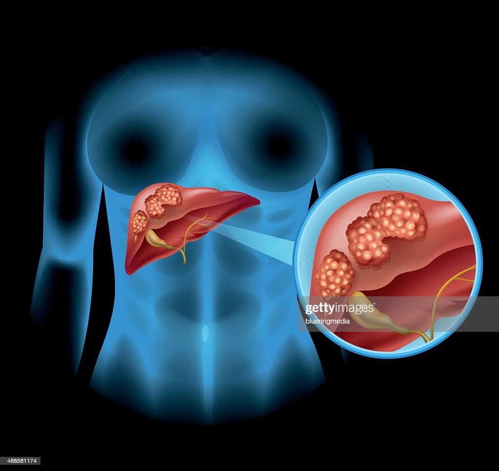 hight resolution of liver cancer diagram in detail vector art