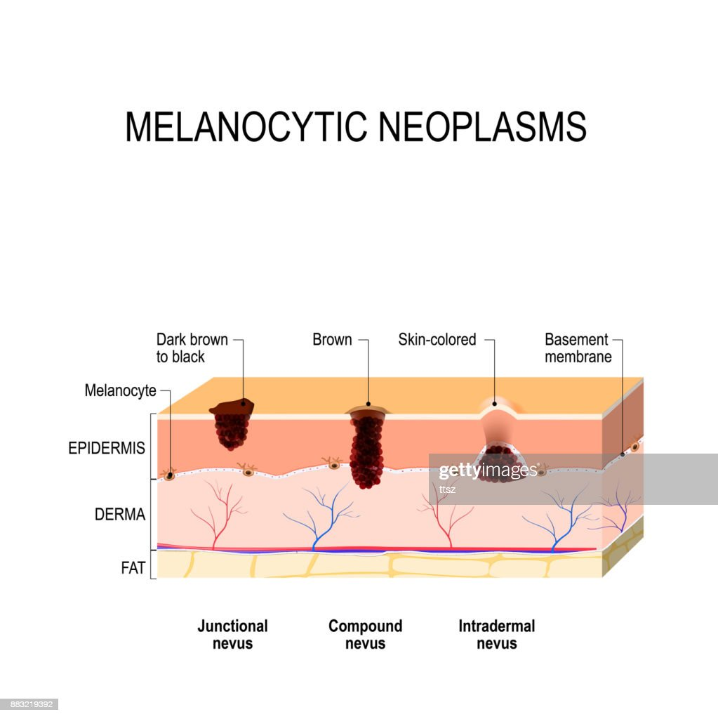 melanocytic nevus difference between a birthmark mole and nevus diagram of birthmark [ 1023 x 1024 Pixel ]