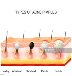 types of acne pimples stock illustration [ 1024 x 1024 Pixel ]