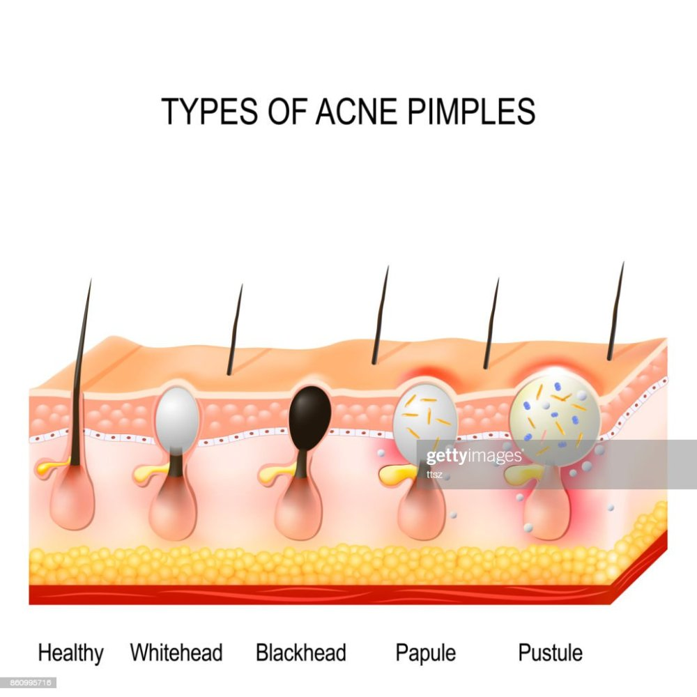 medium resolution of types of acne pimples stock illustration
