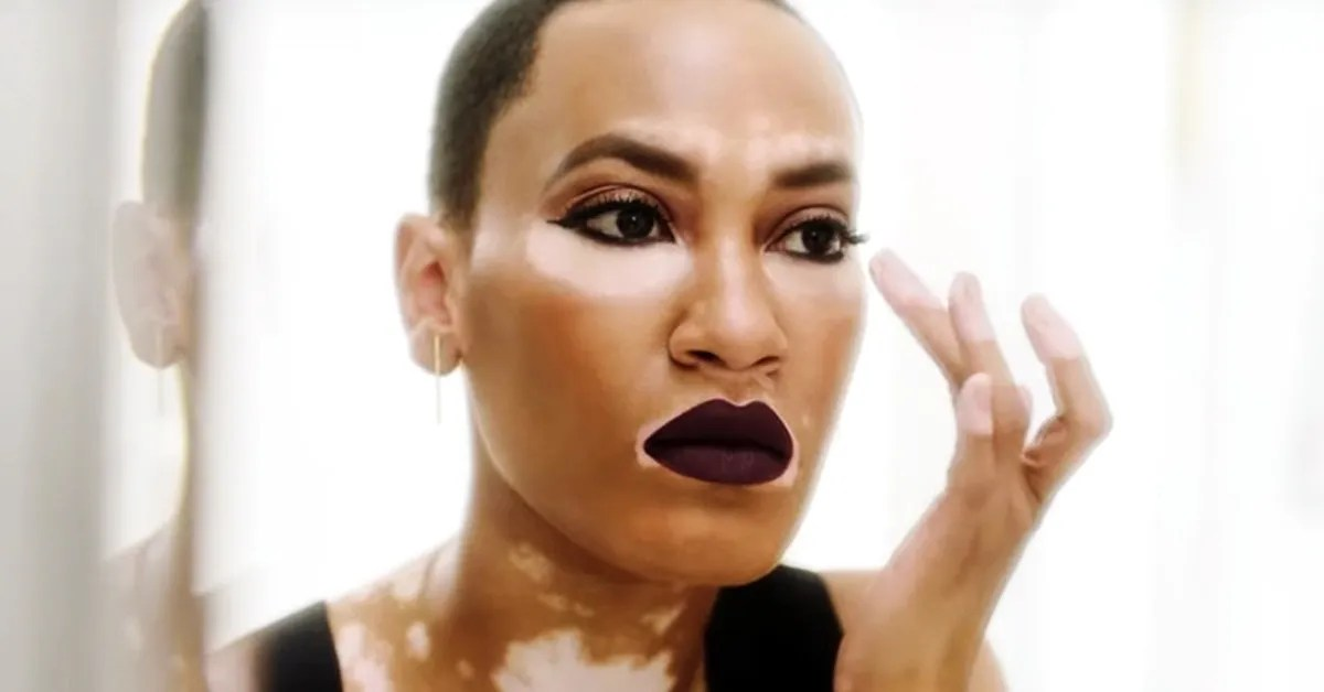 CoverGirls New Foundation Ad Features Its First Model With Vitiligo  Glamour