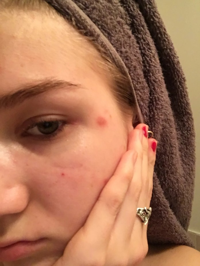 photo of woman with scab on face