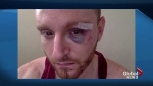 Gay man attacked in Toronto's Church-Wellesley village